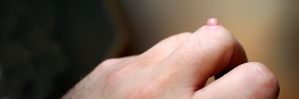 kondylwmata Κονδυλώματα δερματολόγος αφροδισιολόγος Βέρρα Γαλάτσι